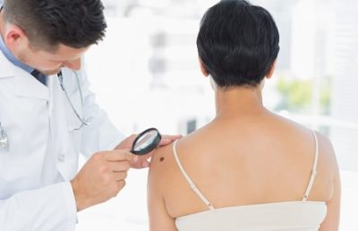 Recognising Melanoma Risk – A Guide for GPs | RACGP 2pts Cat 2 | COMING SOON