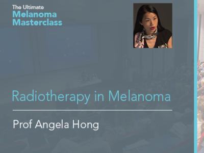 Radiotherapy in Melanoma | 9 min