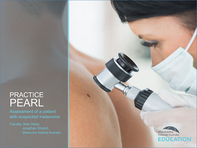 Practice Pearl 1: Assessment of a patient with suspected melanoma | RACGP Accredited | 30 min
