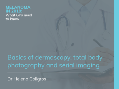 Basics of dermoscopy, total body photography and serial imaging | RACGP | 36 min